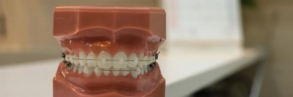 年に1度の歯のクリーニング